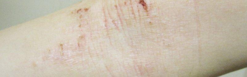 Ez az oka, ha ilyen apró piros pötty jelenik meg a testeden: nézd meg a képet! - Egészség | Papillor