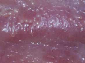 Lézeres Pénisz Kontúrterápia - Mi az a PPP (angolul: pearly penile papules), más néven a hímvessző papillomatosisa és hogyan lehet kezelni?