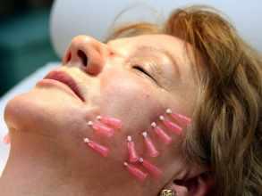 Bioszálas bőrfeszesítés